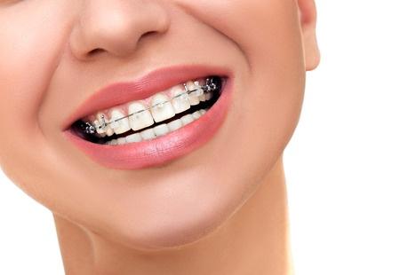 Demed ortodonta ortodoncja Łomża