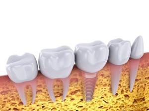 Demed-Łomża-implanty-implantacja